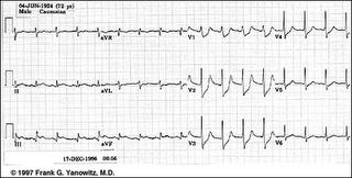 Segmen ST pada penyakit jantung | Abufachri's Blog